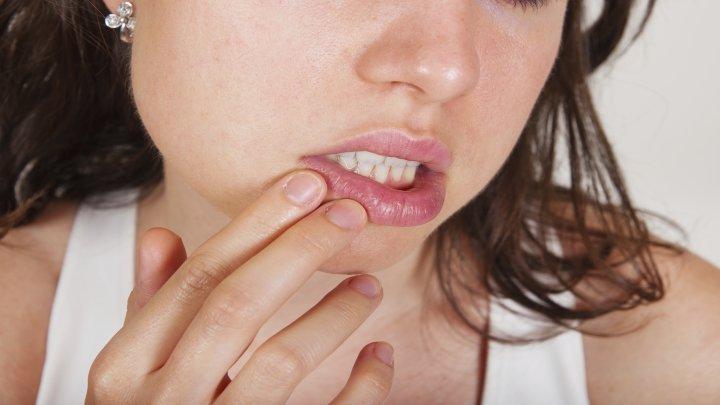 Du hast eine schmerzhafte Entzündung im Mund und weißt nicht, was du dagegen tun sollst? Dann aufgepasst!