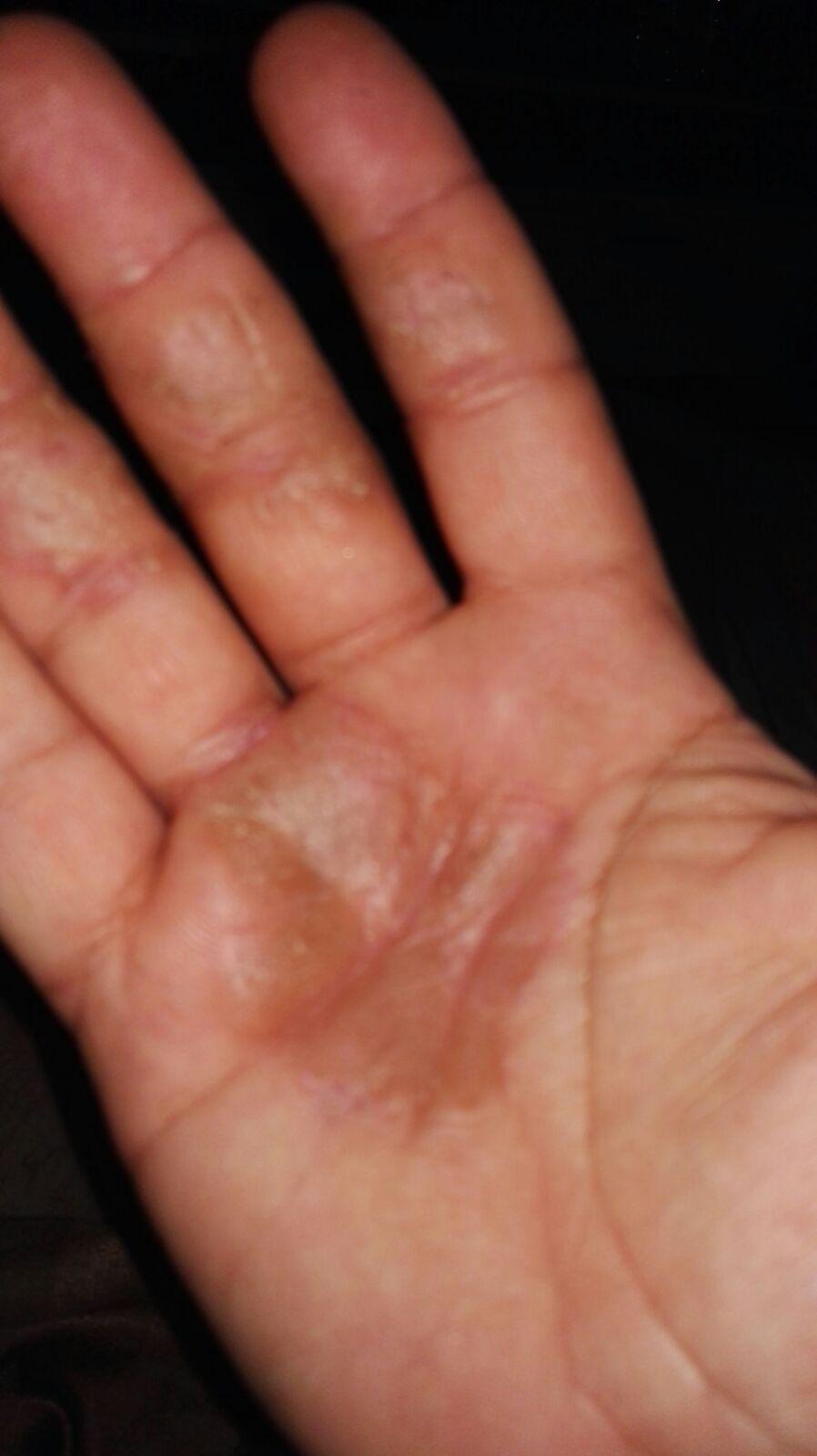 Die Medikamente vom trockenen Ekzem auf den Händen
