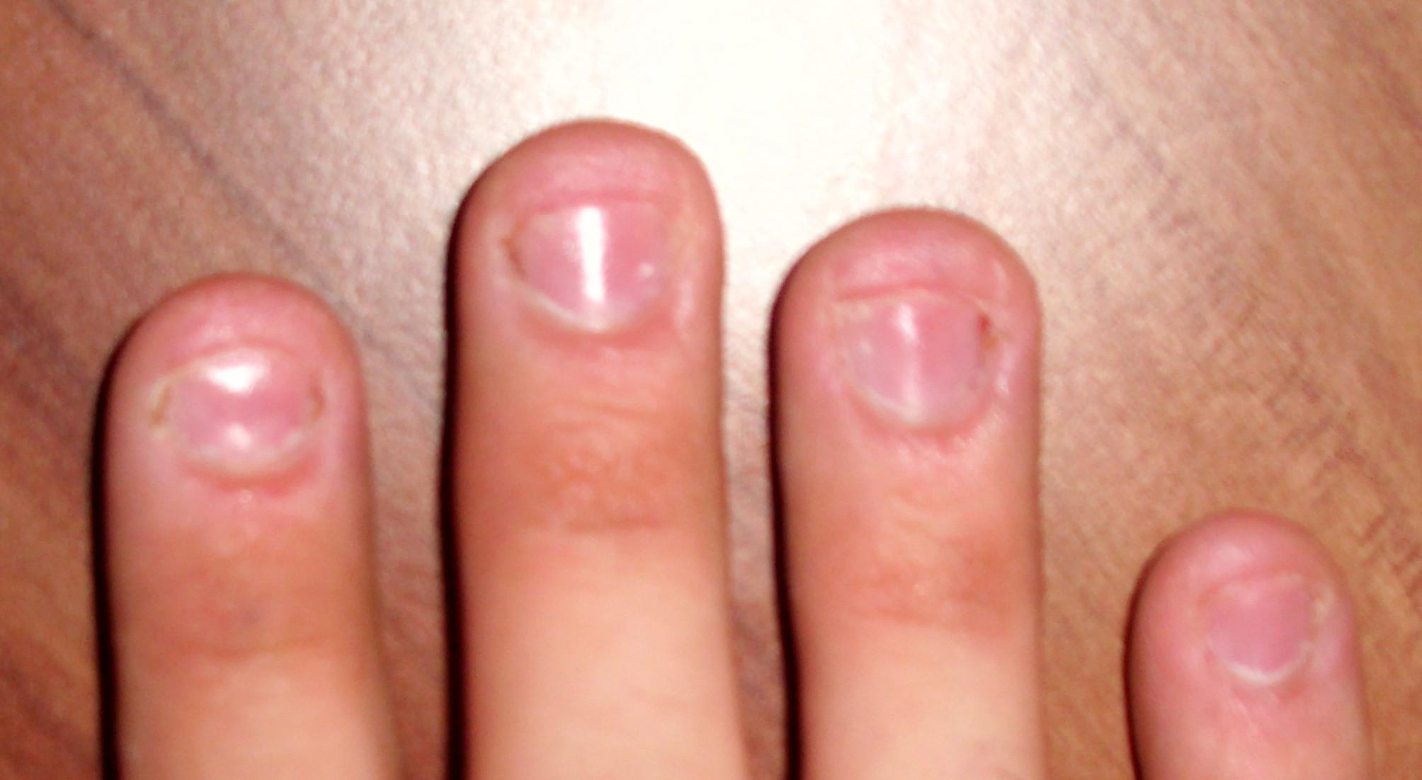 Fingernägel beim Mann lange Nägel oder kurz&q | wer