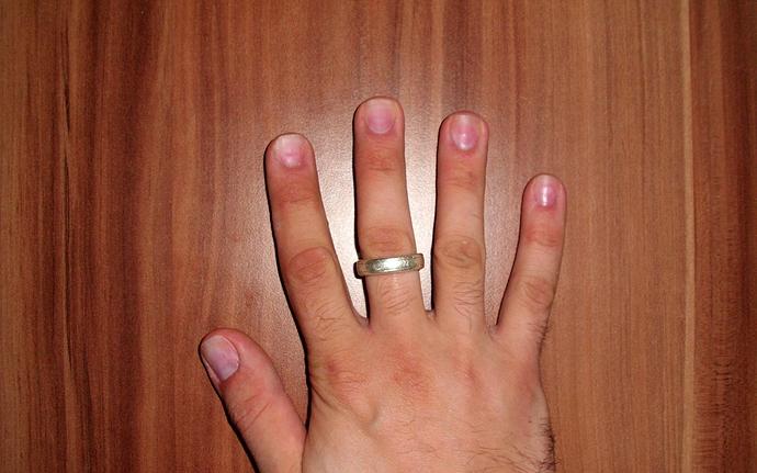 Fingernagel mann lange Ungepflegte fingernägel